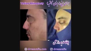 جراحی بینی   دکتر رفیع
