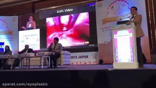 لیفت آندوسکوپی ابرو | سخنرانی پروفسور کشکولی در هند