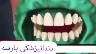 انیمیشن بلیچینگ و سفید کردن دندان