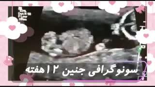 ویدئو جنین ۱۲ هفته ای