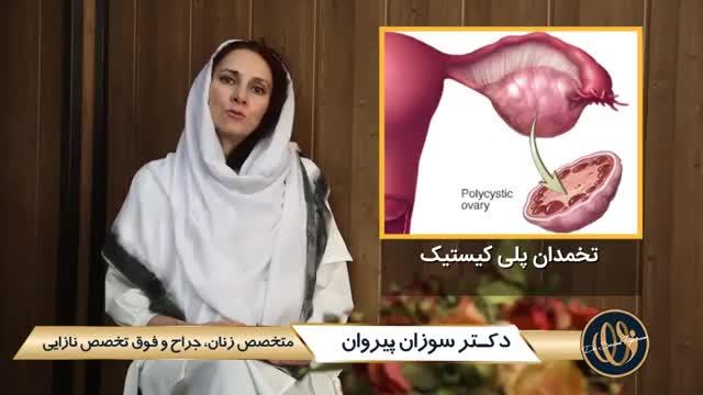 تنبلی تخمدان یا پلی کیستیک | دکتر سوزان پیروان | متخصص زنان تهران