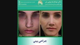 جراحی بینی توسط دکتر عبدالرضا روئین تن فوق تخصص جراحی پلاستیک