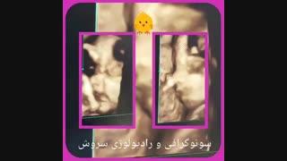 تصویر چهار بعدی صورت جنین