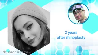 دو سال بعد از جراحی بینی | دکتر شهریار یحیوی جراح بینی تهران