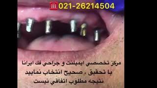 بهترین مرکز ایمپلمنت دندان در تهران