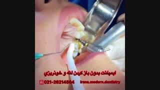 ایمپلنت دندان بدون باز کردن لثه