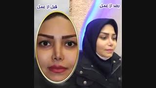جراحی بینی ترمیمی توسط بهترین جراح بینی تهران دکتر گلی